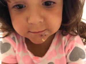 Menina de 3 anos contrai infecção dolorosa após passar o aniversário em Key Biscayne