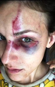 brasileiro preso espancar namorada Flórida